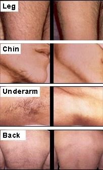 Electrolysis hair removal bikini